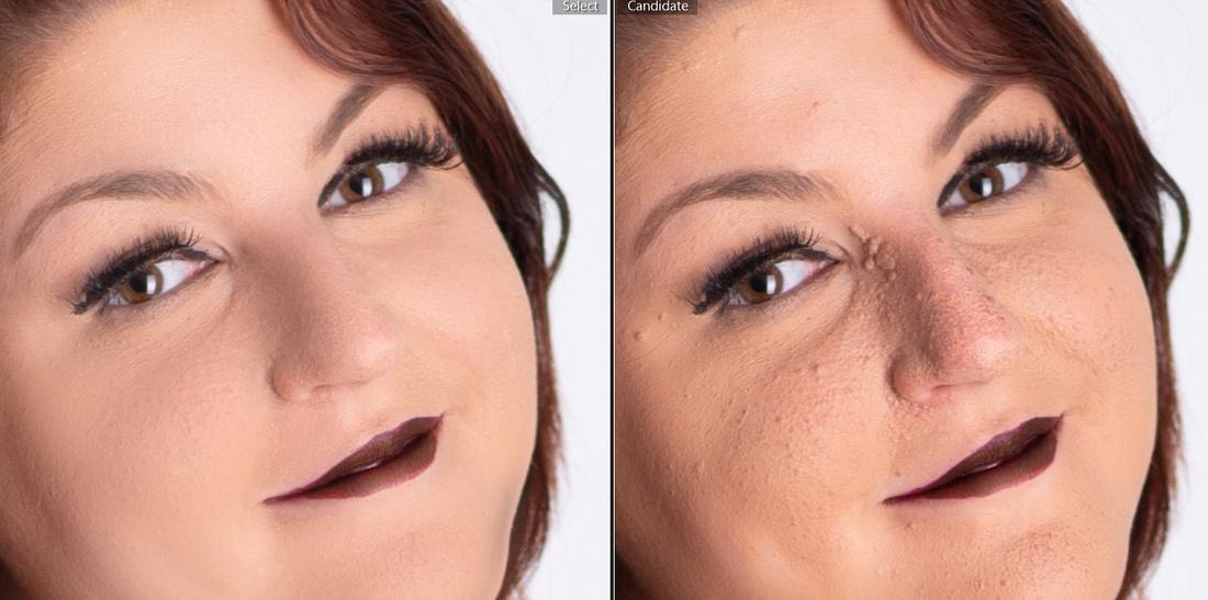 skin smoothing example